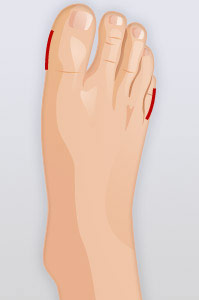 Quick Check Hallux Info